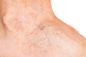 Sclerotherapy therapy